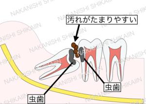 親知らずと手前の歯の間に汚れがたまり、虫歯になりやすい