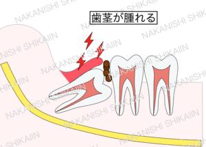 親知らずと手前の歯の間に汚れがたまり、歯茎が腫れる