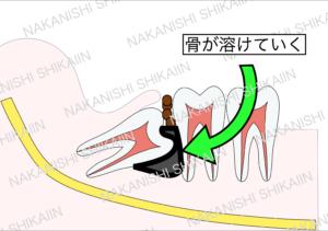 親知らずと手前の歯の間に汚れがたまり、骨が溶けていく