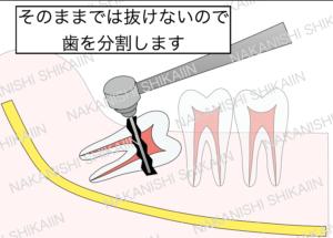 親知らずの抜歯について。そのままでは抜けないので歯を分割して抜きます