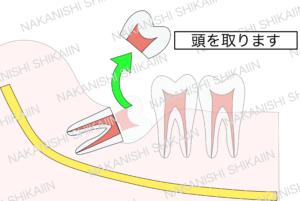 親知らずの抜歯について。分割し、頭の部分を先に取り出します