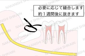 親知らずの抜歯について。残りの歯を抜いて、縫合し、約1週間後に抜きます