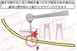 親知らずの抜歯について。歯を分割するときに神経を傷つける可能性がある場合は歯科口腔外科病院に紹介とさせていただきます