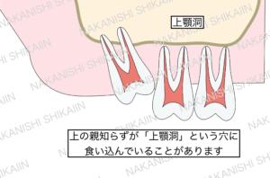 親知らずの抜歯について。親知らずが上顎洞という穴に食い込んでいる時があります