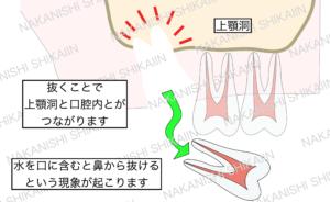 親知らずの抜歯について。親知らずを抜くことで上顎洞と口腔内が繋がり、水を口に含むと鼻から抜ける現象が起きます