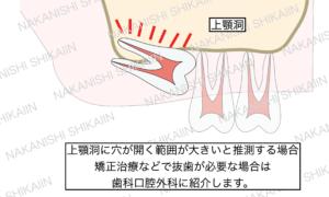 上顎洞に穴が開く範囲が大きいと推測する場合などは歯科口腔外科の病院に紹介します。