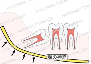 親知らずの抜歯について。親知らずの近くには顎の神経(下槽管)があります