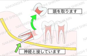 親知らずの抜歯について。親知らずを分割し、頭の部分を取り出します