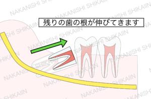 親知らずの抜歯について。残った歯の根が出てきます。