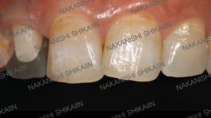 審美セラミックスの被せ物は左側の歯です。見た目では分からないです