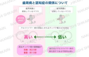 歯周病と認知症の関係について。ネズミの実験では、歯周病に罹患しているマウスの方がアルツハイマーの原因タンパク質Aβの蓄積が多い