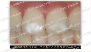 歯の表面が白くなっていることありませんか?
