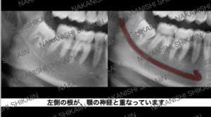 親知らずの抜歯について。顎の神経と近接しています。