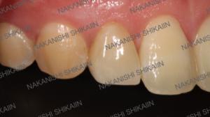 審美セラミックス治療で歯の形を変えられる2
