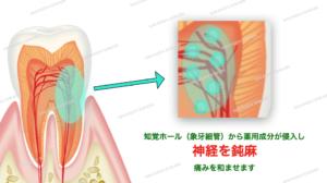 知覚過敏の治療法・知覚ホール(象牙細管)から神経を鈍麻させる