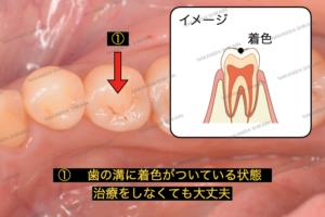 初期虫歯、黒い点は虫歯かと気になるかもしれませんが、歯の溝に着色がある状態です