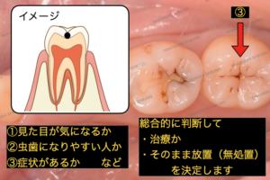 初期虫歯の黒い点は、見た目が気になるか、虫歯になりやすい人か、症状があるかなどで判断していきます