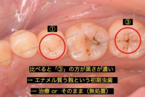 ③は①に比べると濃い黒さです。これはエナメル質う蝕という初発の虫歯です。治療か無処置か、相談の上決定となります。