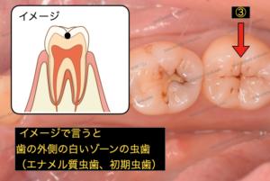 黒い点は初期の虫歯で、歯の外側に限局した初期虫歯です。