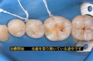 虫歯を除去している途中の状態です