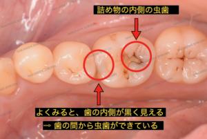 歯の内側が黒く見えており、歯の間から虫歯ができています