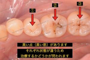 初期むし歯、黒い点、黒い筋、がありますが、状態が違うため治療の判断基準が変わります
