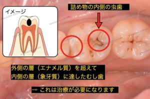 外側の層を超えて内側の層(象牙質)に達したむし歯は治療が必要になります